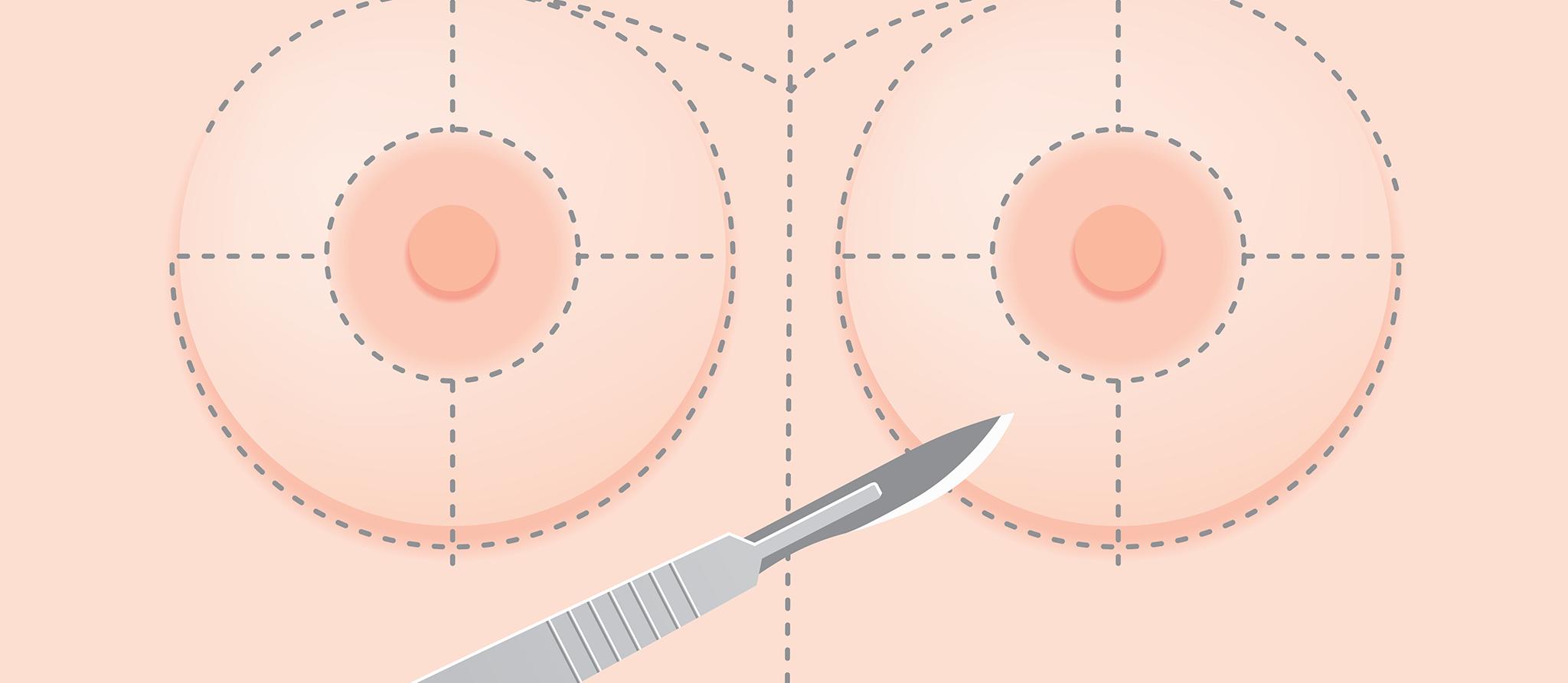 implants-mammaires